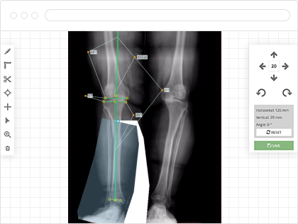 Click2correct preoperative planning and templating software for Orthopedic templating software